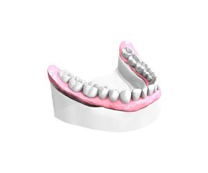 Remplacer plusieurs dents absentes ou abîmées à Melun